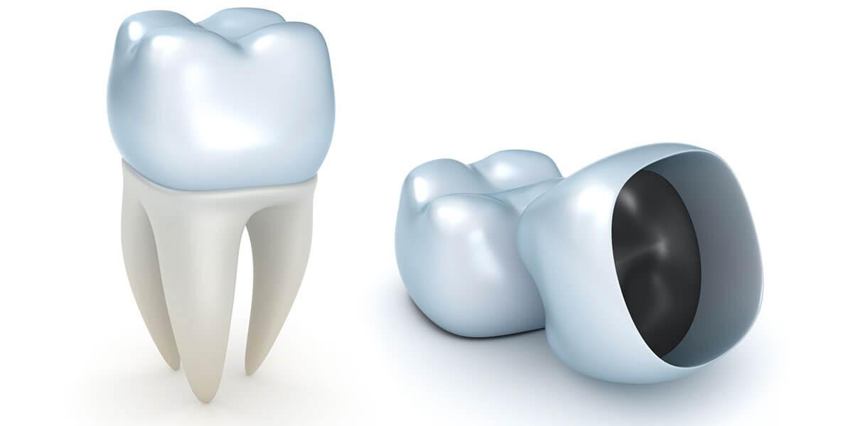 CAD/CAM Dentistry