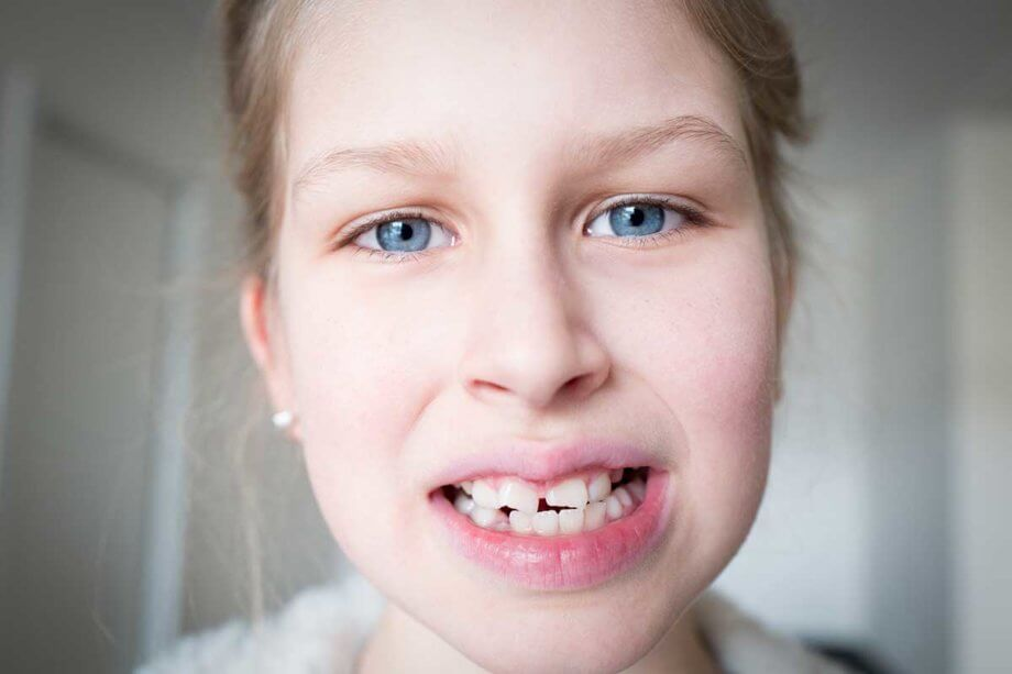 young girl with crooked teeth