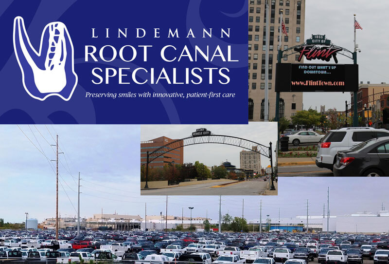 Root Canals in Flint MI