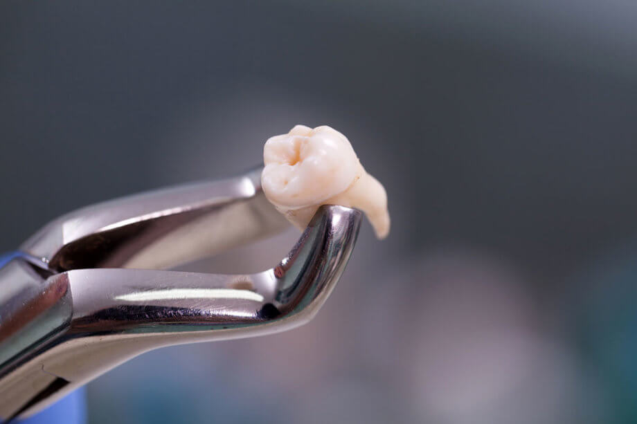 What to Expect After Wisdom Tooth Extraction | Lindemann RCS